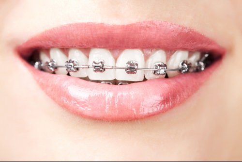 Close up of woman's smile with traditional metal braces on teeth