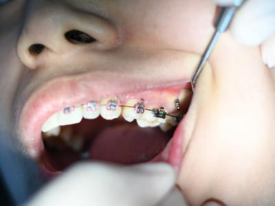 dr tony weir orthodontist brisbane